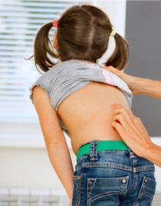 学童期の側弯症の早期発見の重要性